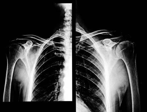 Lung Life COPD app: Boehringer Ingelheim